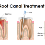 4 Reasons To Seek Out Root Canal Therapy Immediately
